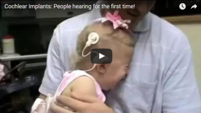 Megható videó, amelyben hallássérültek először hallanak hangokat!